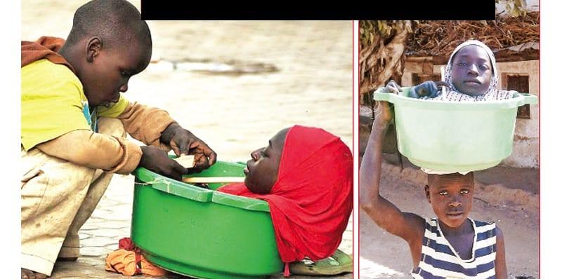 Photo de Nigeria: Elle n'a qu'une tête, un tronc et des bras, et peut vivre dans un petit seau (vidéo)