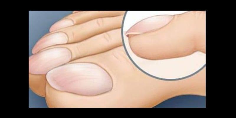 Photo de Quelques symptômes des maladies du foie que plusieurs personnes ignorent