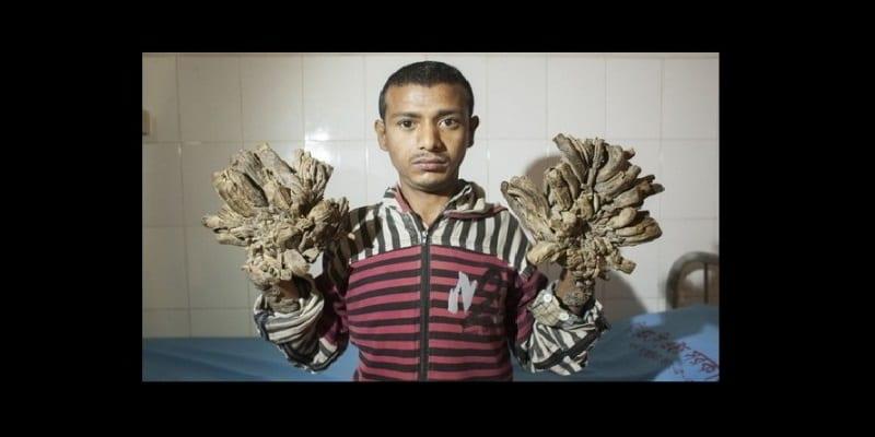 Photo de Bangladesh: L'opération chirurgicale de « l'homme arbre » a été un succès