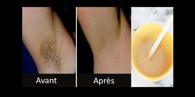 Photo de Santé: Voici 3 recettes pour retirer les poils des aisselles en 2 minutes