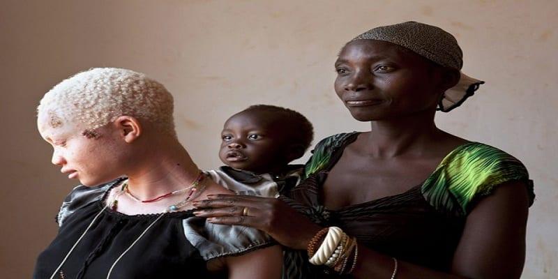 Photo de Malawi : la chasse aux albinos, une réalité inquiétante