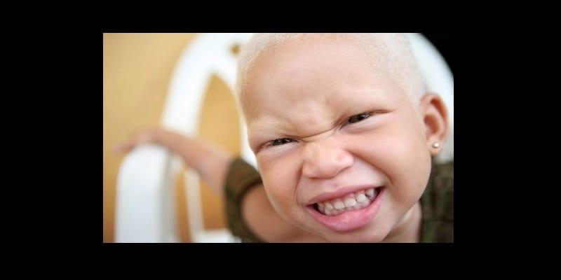 Photo de Les albinos et la sorcellerie : découvrez ce qu'il en est exactement