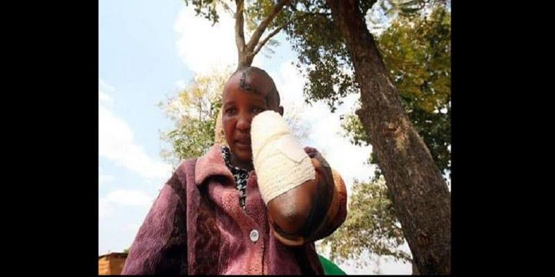 Photo de Kenya/Violences conjugales: Elle se fait couper les deux mains par son mari (PHOTO)