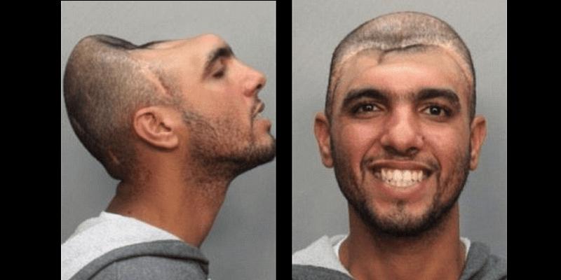 Photo de L'homme au demi-crâne arrêté. Les raisons