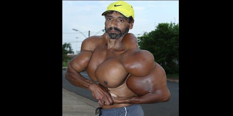 Photo de Un homme s'injecte de l'huile dans les muscles pour ressembler à  Arnold Schwarzenegger