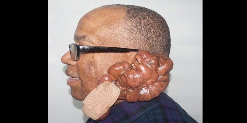 Photo de Santé: découvrez la maladie dont souffre cet homme depuis plus de 12 ans