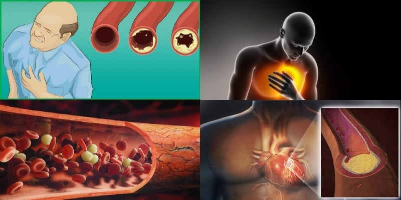 Photo de Santé: attention! Voici ce qui bouche les artères et cause la mort