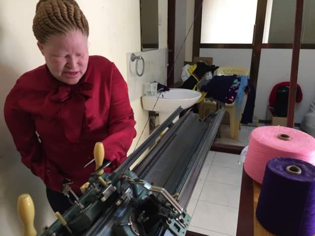 Photo de Cette femme albinos sans bras, possède une usine de tissage. Découvrez sa terrible mésaventure!