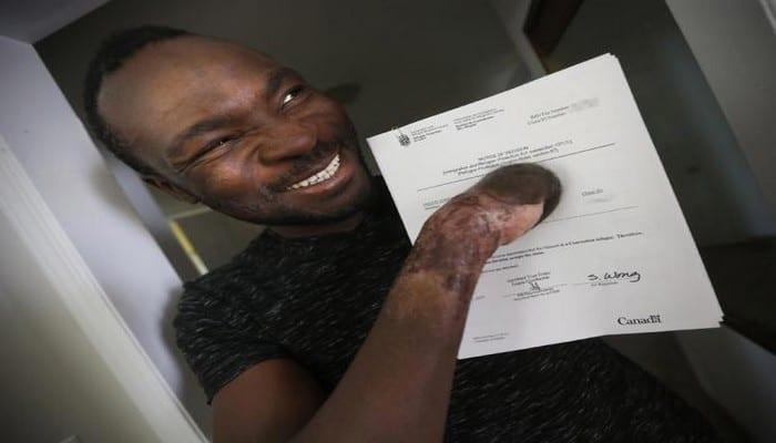 Photo de Après avoir perdu les doigts en traversant la frontière canadienne, ce Ghanéen obtient le statut de réfugié. Photos