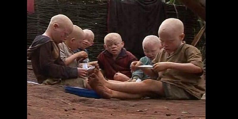 Photo de Mozambique/Crime rituel: un albinos tué et décapité