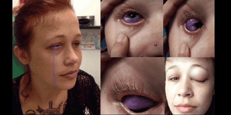 Photo de Canada: un tatouage dans l'œil laisse un mannequin de 24 ans presque aveugle (vidéo)