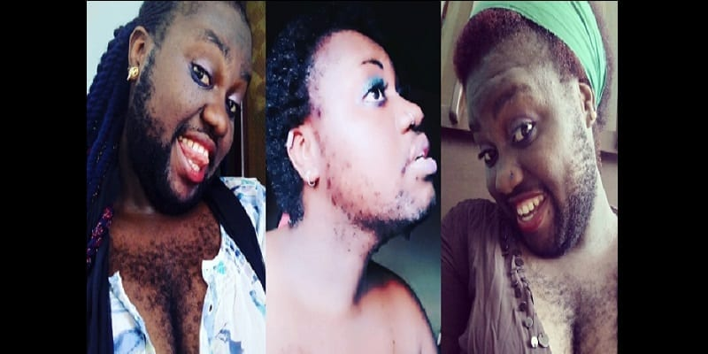 Photo de Nigeria : la femme la plus poilue veut changer son look (photos)