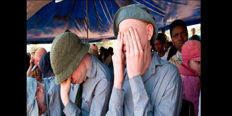 Photo de Burundi : Le cadavre d'un albinos découvert sans les membres