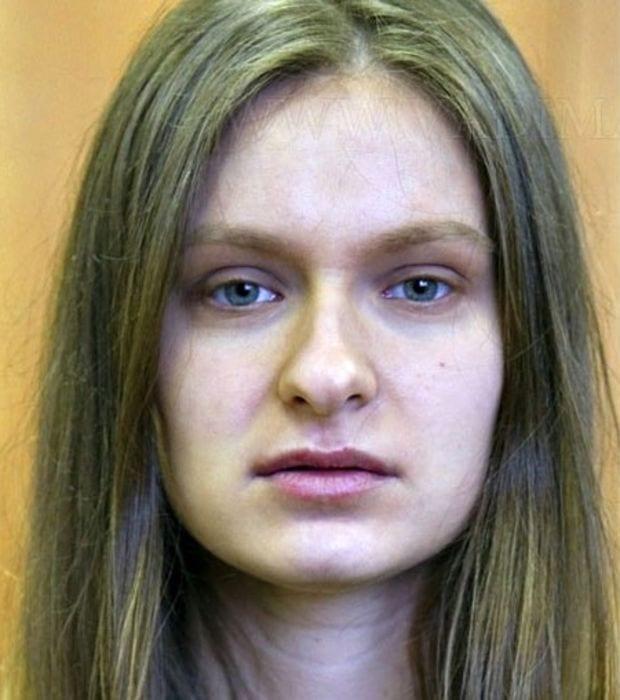 Photo de Carence en vitamines : 5 symptômes visibles sur votre visage