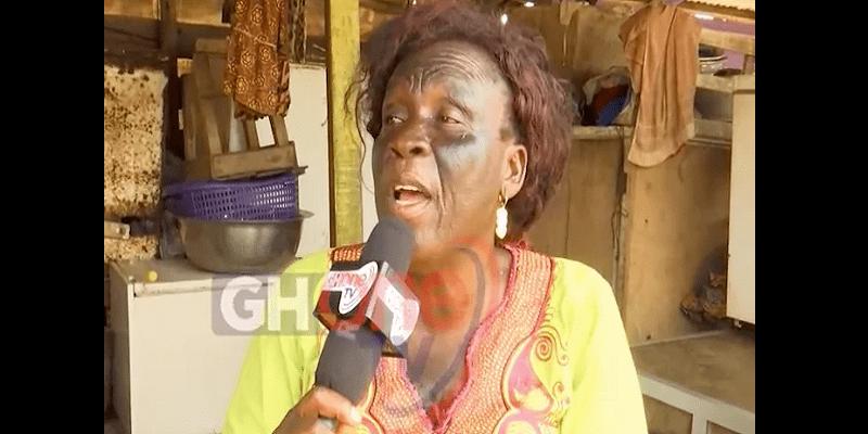 Photo de Ghana: elle perd la vue dans ses tentatives de se blanchir la peau