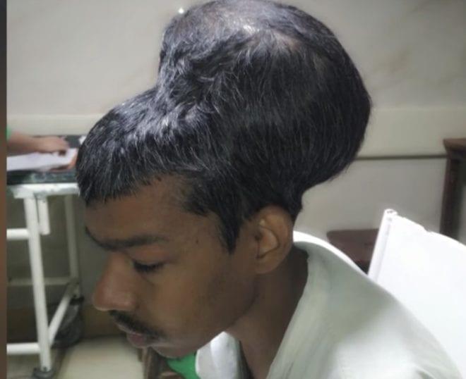 Photo de Inde : Un homme se fait opérer d'une tumeur de 1,87 kilos au cerveau!