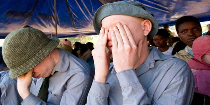 Photo de Malawi: Les albinos réclament justice