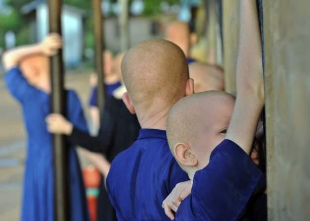 Photo de Mali/Crime rituel: Une fillette albinos kidnappée et égorgée