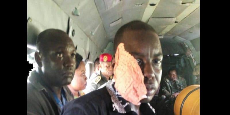 Photo de Cameroun: Le convoi du ministre de la défense attaqué par les séparatistes