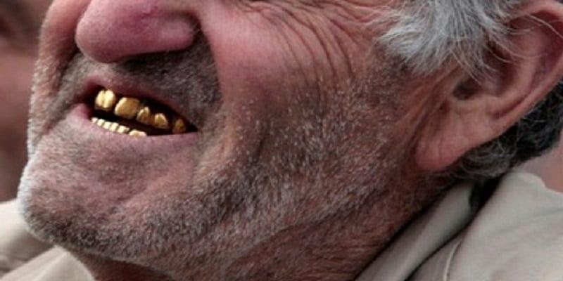 Photo de France : Un homme se fait arracher 4 dents en or dans la rue
