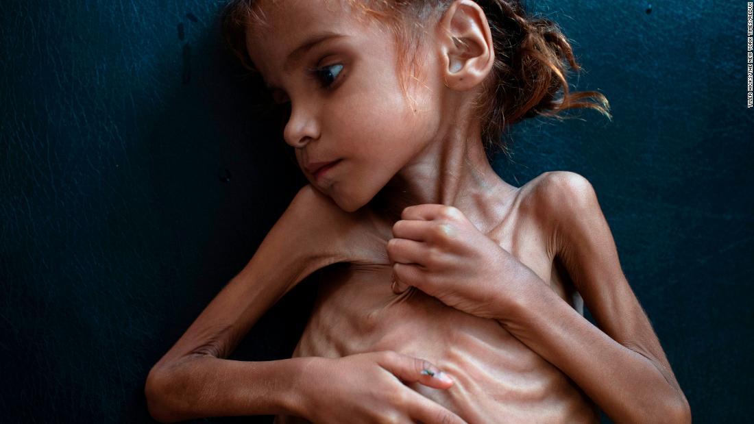 Photo de Triste nouvelle pour Amal Hussein, devenue le symbole de la crise yéménite