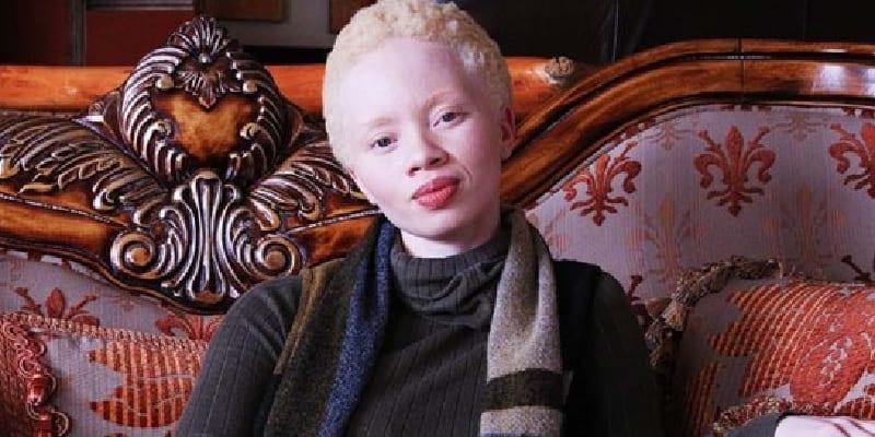 Photo de Mode : Pour une première, un mannequin albinos en couverture de Vogue