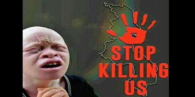 Photo de Malawi-Crime rituel : Un homme condamné à mort pour le meurtre d'un albinos