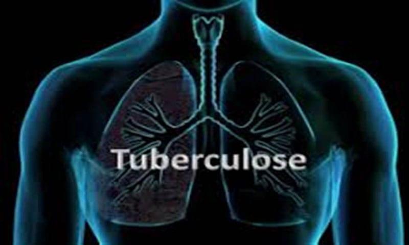 Photo de Tuberculose : près de 4500 personnes en meurent chaque jour (OMS)