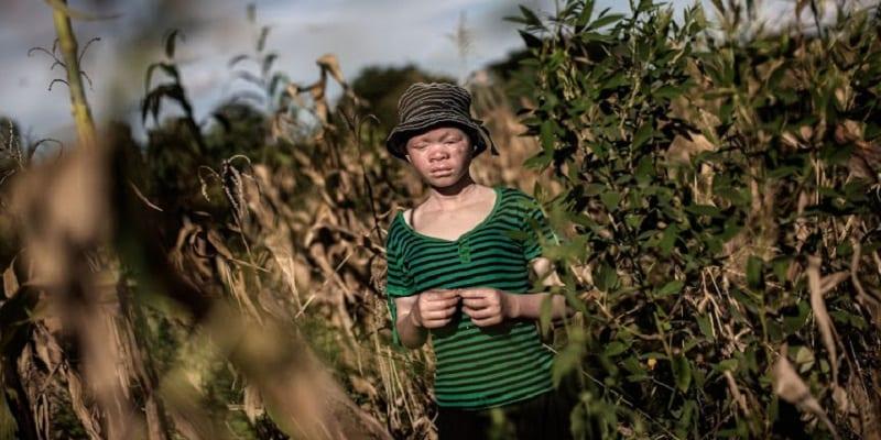Photo de Malawi-crime rituel: 3 personnes condamnées à mort pour le meurtre d'un albinos
