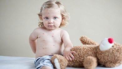 Photo de Santé : Ce qu'il ne faut pas faire quand votre enfant est atteint de varicelle