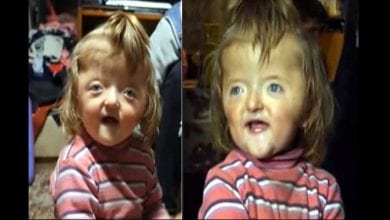 Photo de Insolite : une crèche interdit l'accès à une petite fille par peur que son visage effraie d'autres enfants