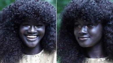 Photo de People : Le top 7 des stars ayant une couleur de peau unique