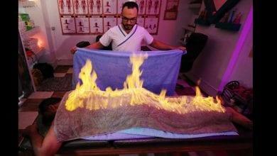 Photo de Egypte : un masseur utilise le feu pour soulager les douleurs musculaires (vidéo)