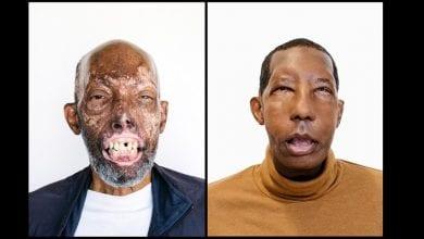 Photo de Après 18 interventions chirurgicales, il devient le premier Afro-Américain à recevoir une greffe du visage (photos)