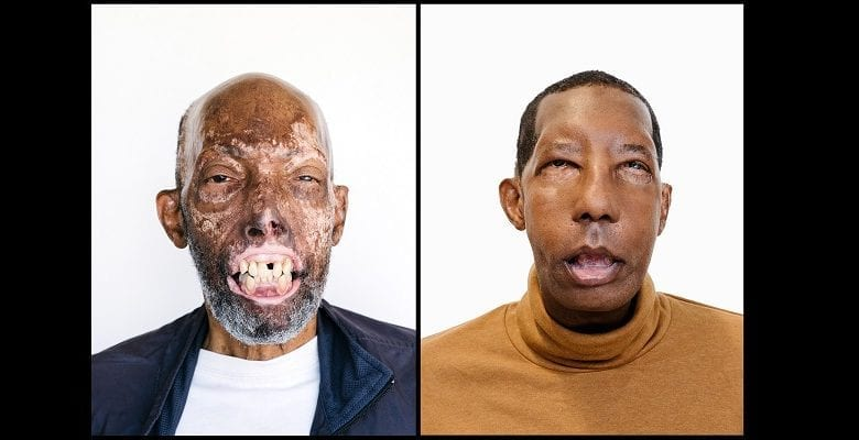 face-transplant-african-american-2-1