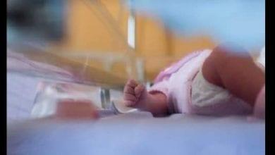 Photo de Portugal: un bébé né sans visage bouleverse le pays