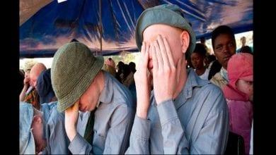 Photo de 6 choses à savoir sur le meurtre rituel des albinos dans certaines régions d'Afrique