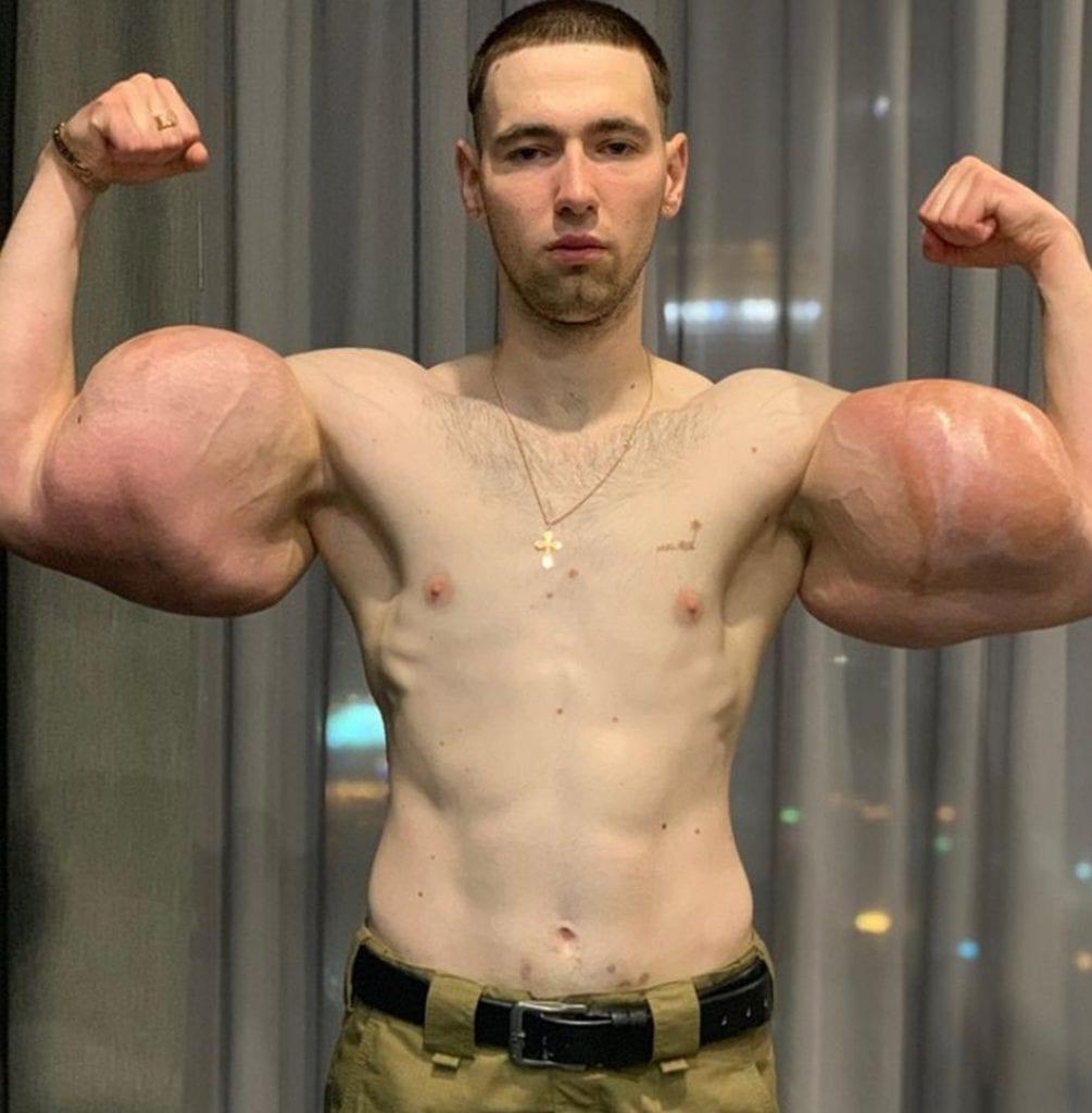 MMA : ce bodybuilder de 23 ans subit une intervention chirurgicale pour retirer une substance de ses biceps (photos)