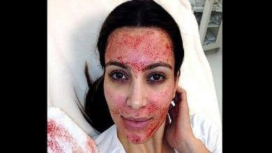 Photo de Kim Kardashian intente un procès contre un médecin esthétique