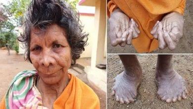 Photo de Inde: découverte d'une femme avec 31 doigts et orteils-PHOTOS