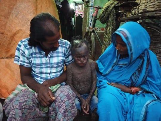 Inde : âgé de 10 ans, il souffre d'une maladie qui lui fait perdre la peau comme un reptile (photos)