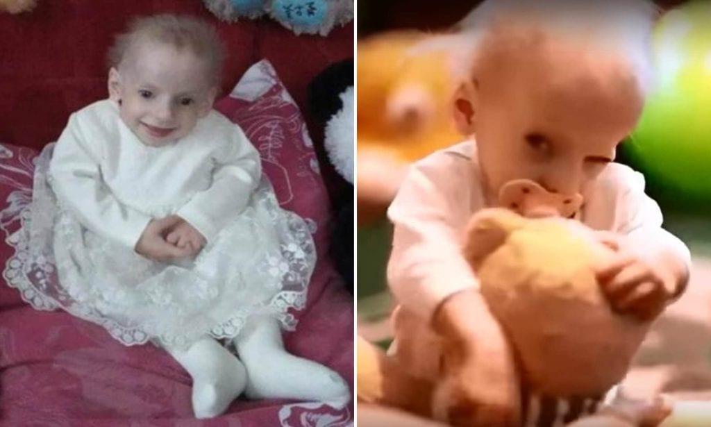 Ukraine : une fillette de 8 ans devient la plus jeune personne au monde à mourir de vieillesse précoce