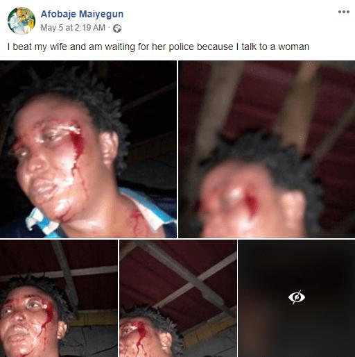 Nigeria : il bastonne son épouse et publie les photos sur Facebook
