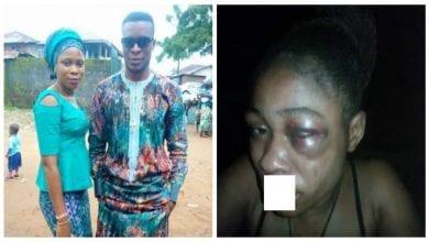 Photo de Nigeria: un homme bat son épouse qui refuse un avortement de sa grossesse de 3 mois