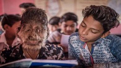 Photo de Découvrez 6 des enfants les plus étranges du monde (photos)