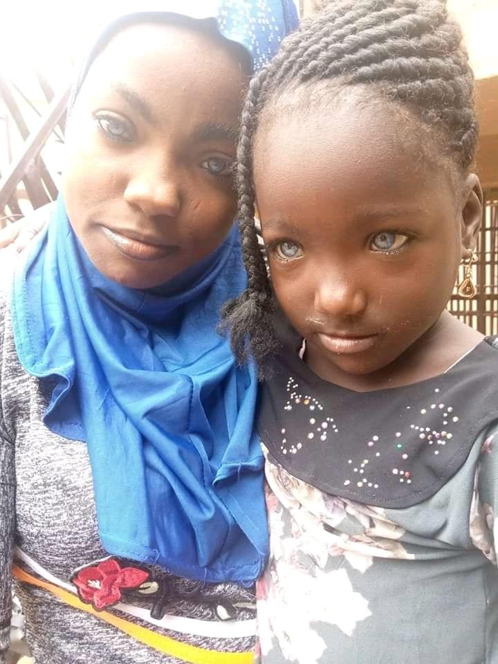 Nigeria: un homme aurait rejeté sa fille parce qu'elle a des yeux bleus (Photos)