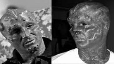 Photo de « Black Alien » : Après les oreilles, le Montpelliérain se fait retirer le nez