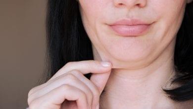 Photo de Double menton : techniques pratiques pour s'en débarrasser