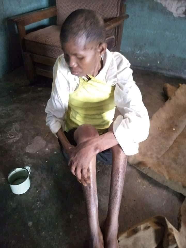 Une femme traitée de sorcière, mise en cage pendant 3 ans par son époux