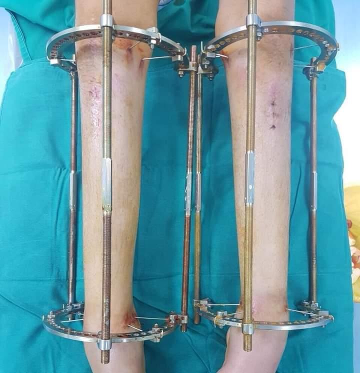 Insolite : désormais une chirurgie pour aider à grandir- Photos